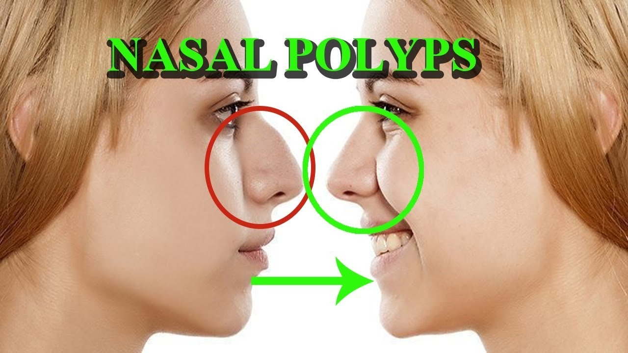 Polyps in the nose: treatment by various methods 11
