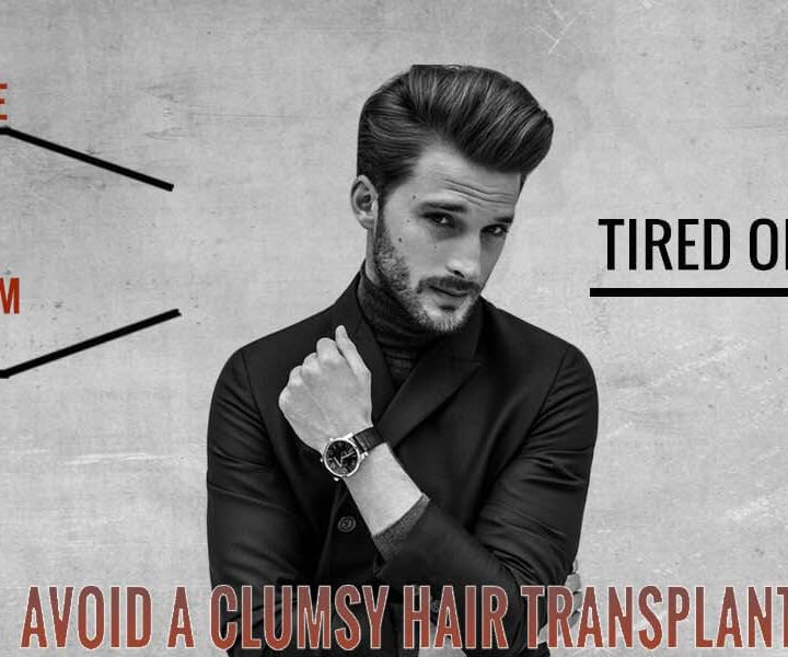 Complete Information catalogue for Hair Transplant