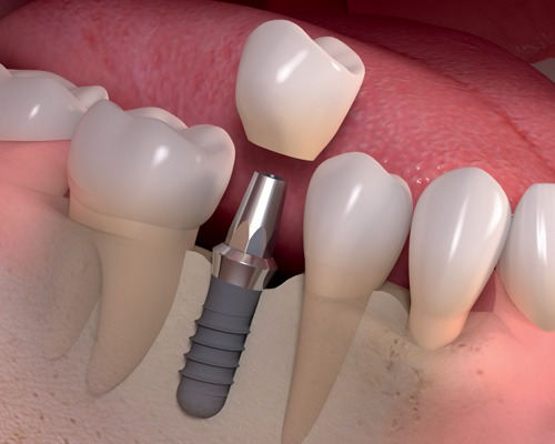 Missing Teeth Replacement - Best Alternative Among All the Options