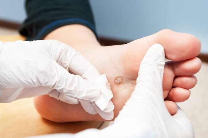 Plantar Wart Removal Houston
