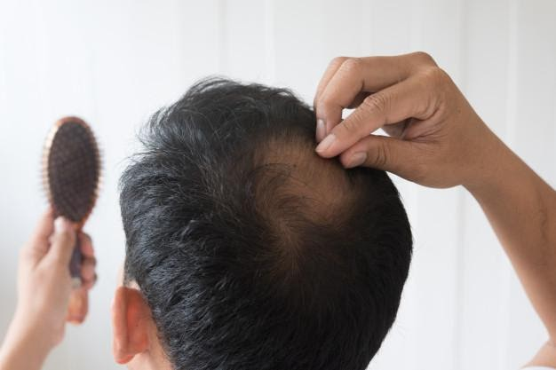 Top 7 Ways to Stop Hair Loss for Men