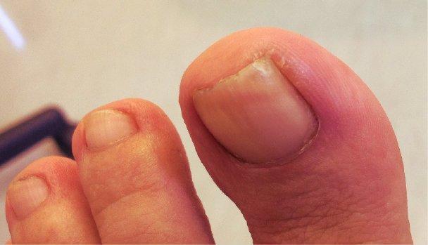 ingrown toenail relief houston