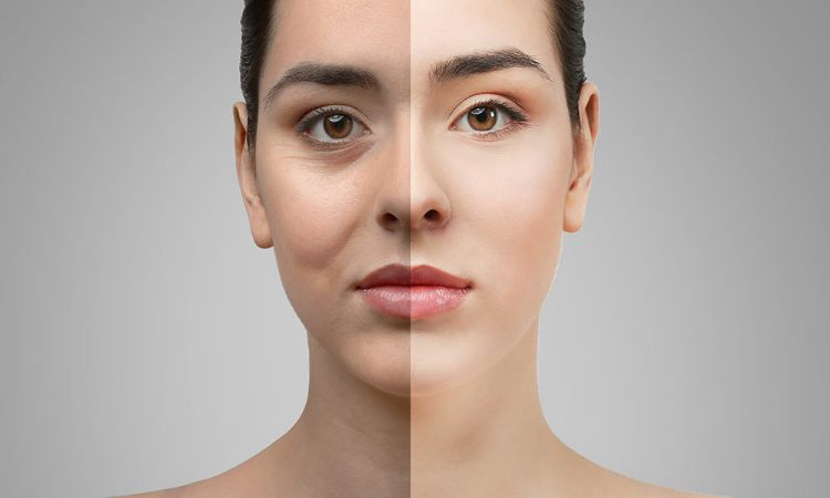 All about cosmetic treatments