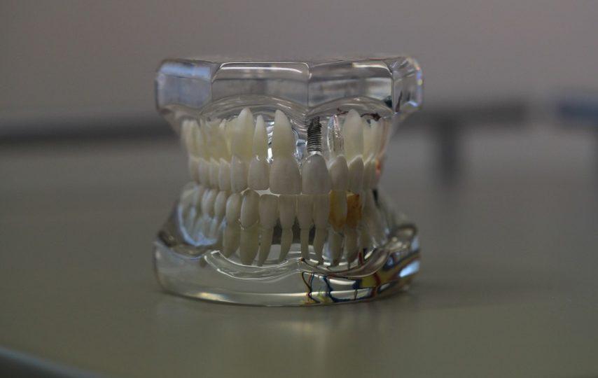 Dental cavitation